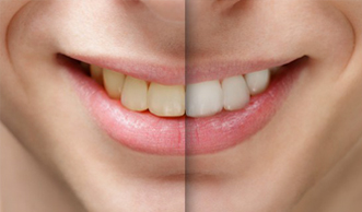 A before and after photo showing the benefits of teeth whitening.